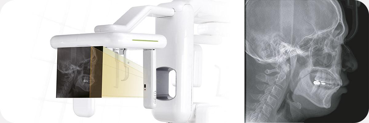 Латеральная проекция дентального компьютерного 3D томографа Genoray Volux 55 с цефалостатом.jpg